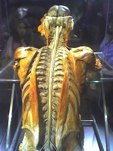 Human Intranet | Spinal cord with the outer bits of ...
