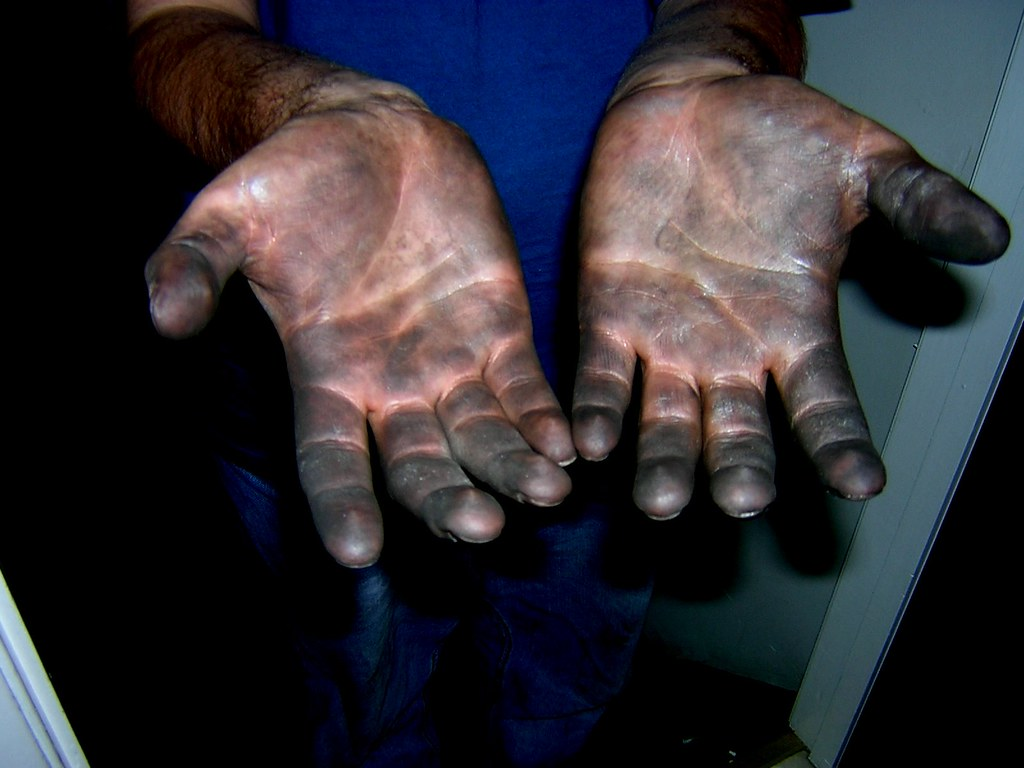 Hand Wash Car Wash >> Manly Hands | This is what your hands look like after ...