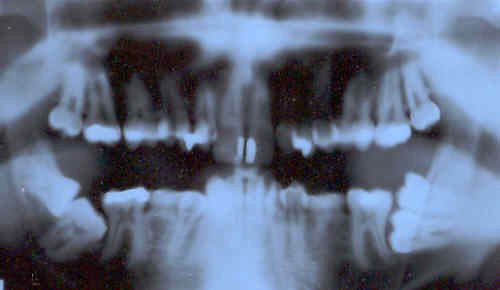 panoramic x-ray of my teeth | by p_x_g