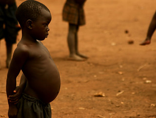 Malnutrition | by TKnoxB