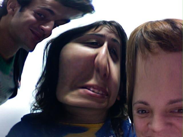 deformed people - photo #28