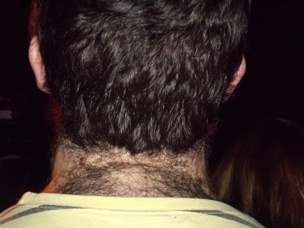 Absolute Best Way to Remove Back Hair for Men - Manscaped.com |Hairy Back And Neck