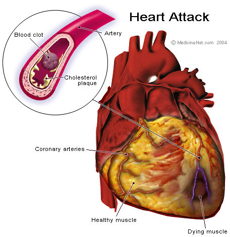 Heart attack anatomy heart attack how the blood clot blo flickr heart attack anatomy by gandhiji40 heart attack anatomy by gandhiji40 ccuart Image collections