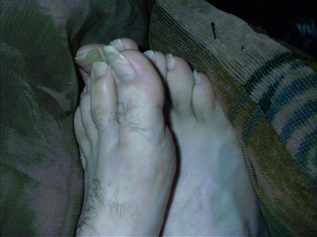 Jeremys Nasty Feet By Katie_bear29 Jeremys Nasty Feet By Katie_bear29