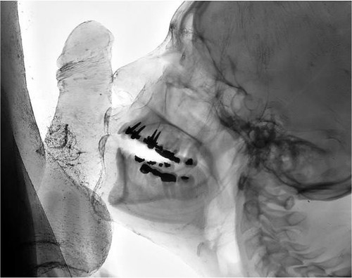 Sex In The X-Ray Kittitaslu Flickr-6110