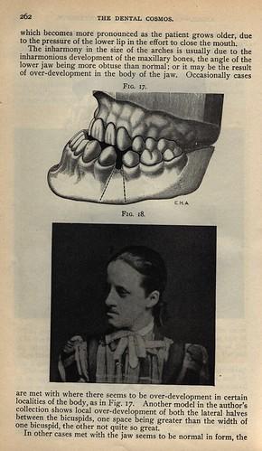 dental cosmos  edward angle  1899  classification of maloc u2026