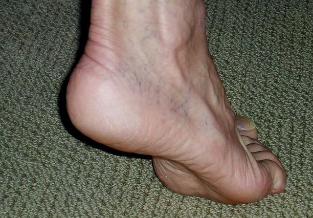 tendonitis rehab
