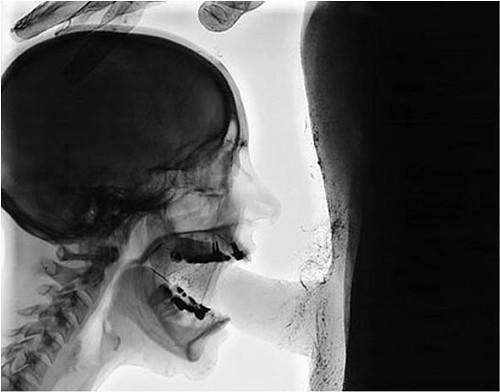Sex In The X-Ray Kittitaslu Flickr-1153