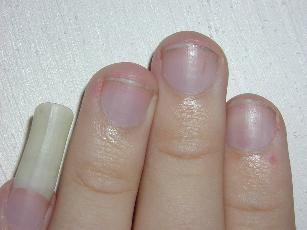 my long pinky nail | Thomas Stromberg | Flickr
