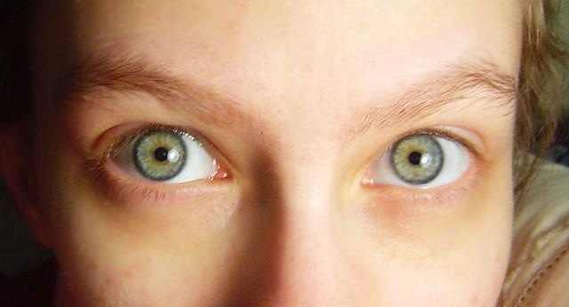 eyes   my eyes. blue/green/yellow central heterochromia ...