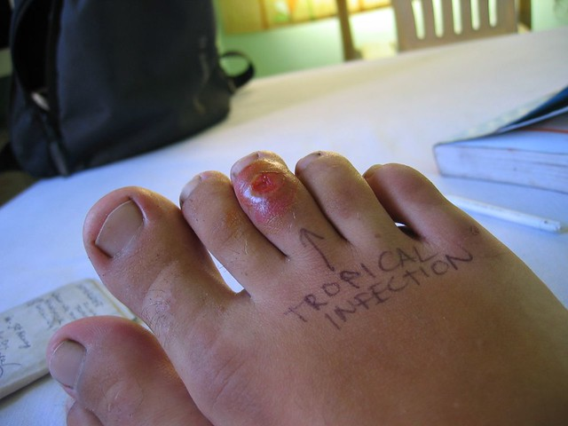 how to help mosquito bites on feet
