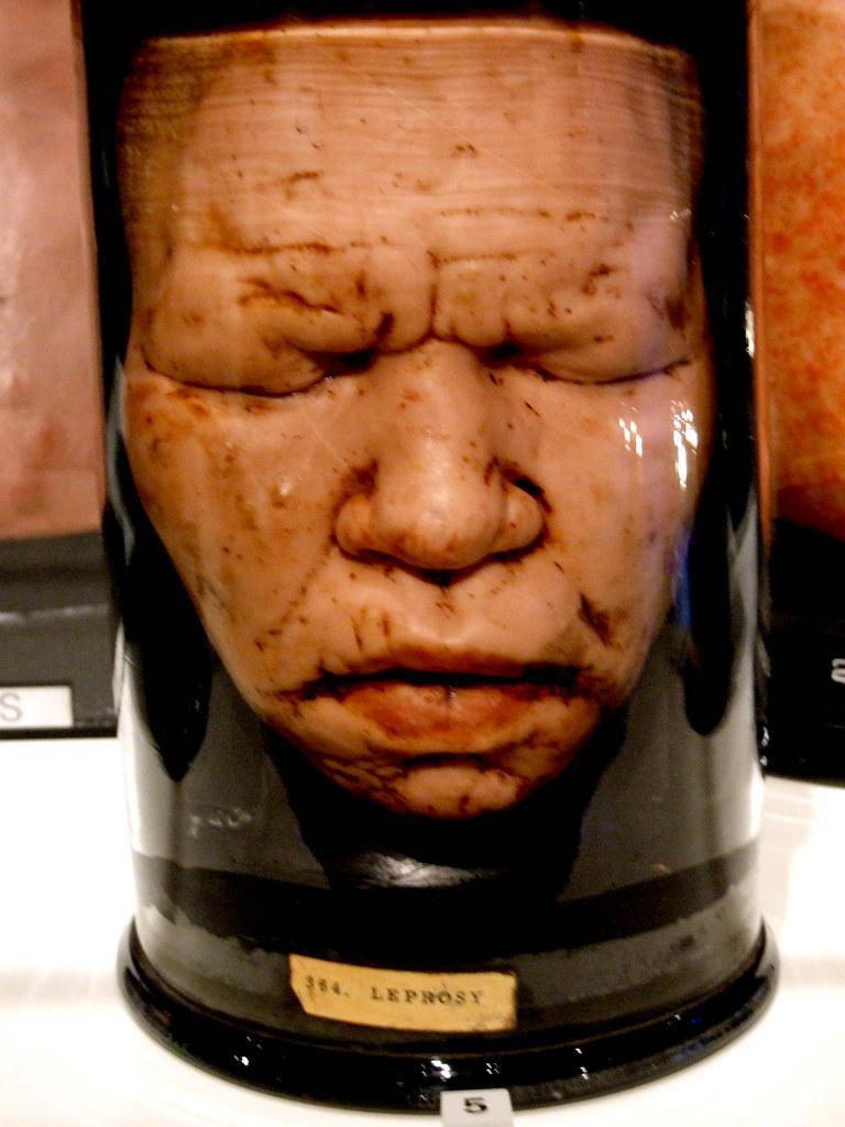 Head in a jar wax head used as medical teaching aid for Heads in jar