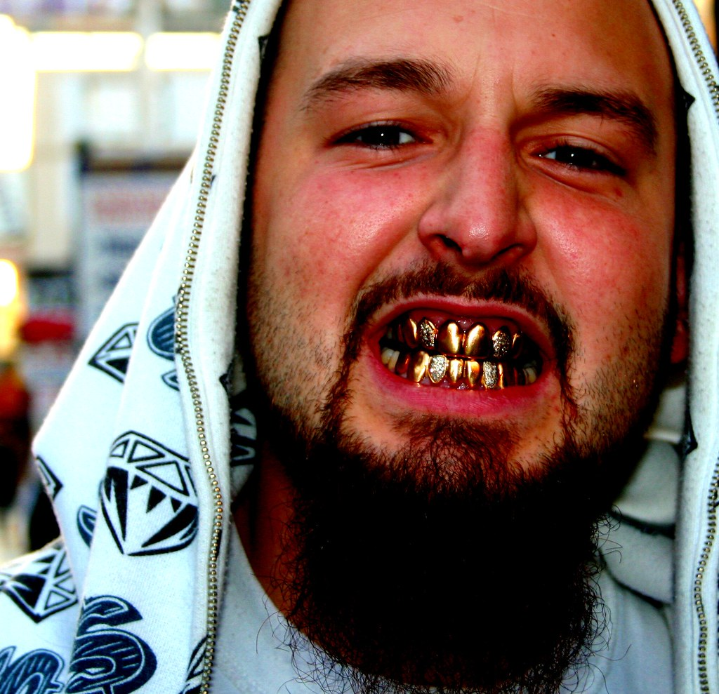 Gold Amp Diamond Teeth Man Met Him On Hollywood Boulevard