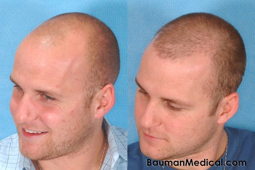 Ag Lside Hair Transplant Bauman 400x600 Before And 8
