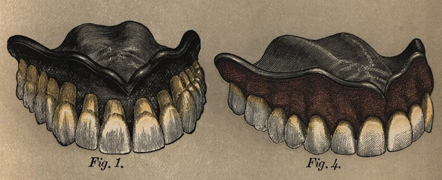 Dental Cosmos: Campbell, 1880 (Rubber Plates)