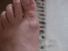 Toe Pre-surgery | by deb roby