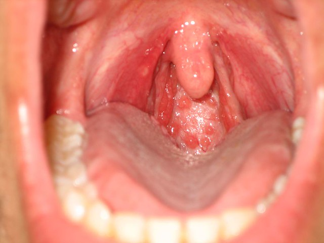 Strep Throat Notice The Back On The Throat In This Picture Flickr