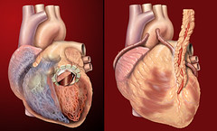 Human heart, anterior view, artificial valve, coronary bypass | by Patrick J. Lynch