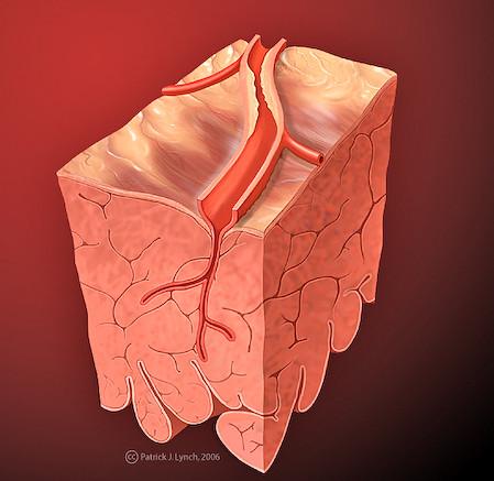 Heart coronary artery blockage