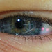 The eye is a window to the soul.....