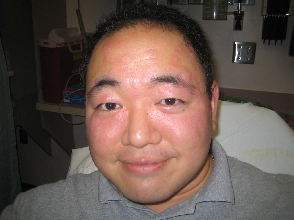 Image Result For I M Allergic