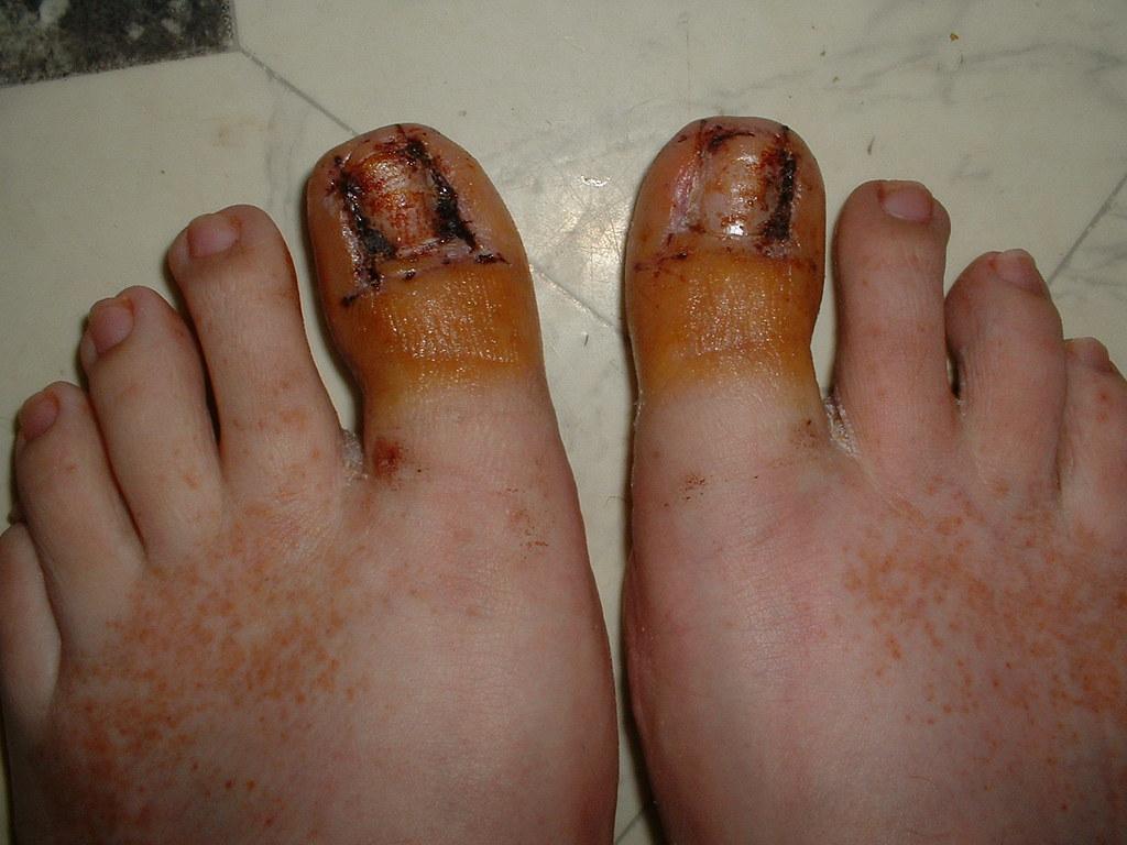 After Toenail Surgery | After having ingrown toenails remove… | Flickr