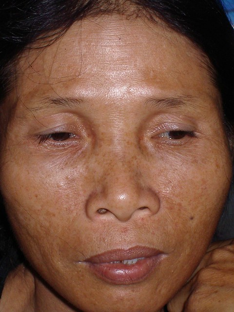 "Hypothyroidism   Note her eyebrows ""stop"" halfway ..."