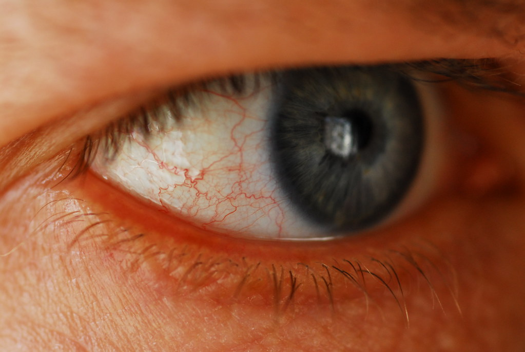 how to get rid of red veins in eyes
