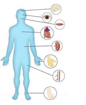 Biến chứng tiểu đường có thể làm tổn thương mọi cơ quan trong cơ thể