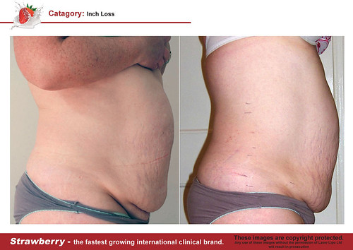 B4 & After female abdomen 12 lrg