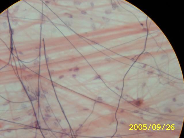 I lucker bindväv är det glest mellan proteinfibrerna (rosa).