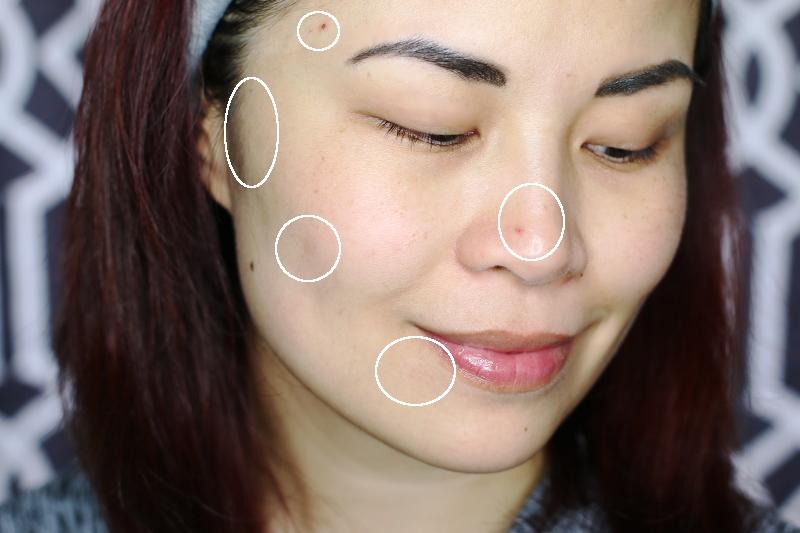 acne-scar-breakouts-7