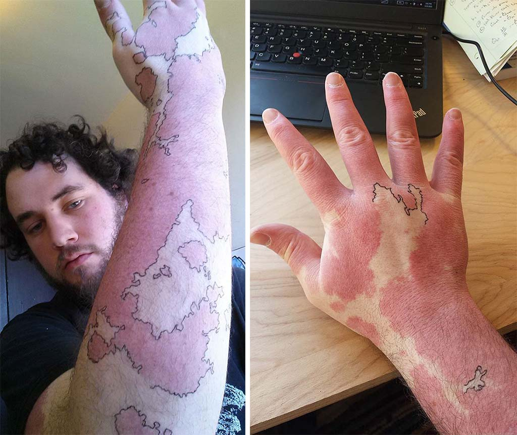 Tattoos covering up birthmarks: The most creative scar & birthmark tattoos & tattoo ideas – World Map