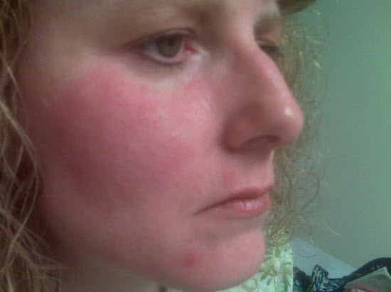 grain allergy red face rash and swelling