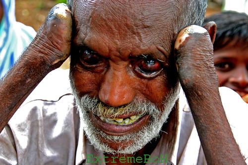 Lepra enfermedad de hansen fotos
