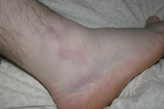 My nasty ankle | by ishane