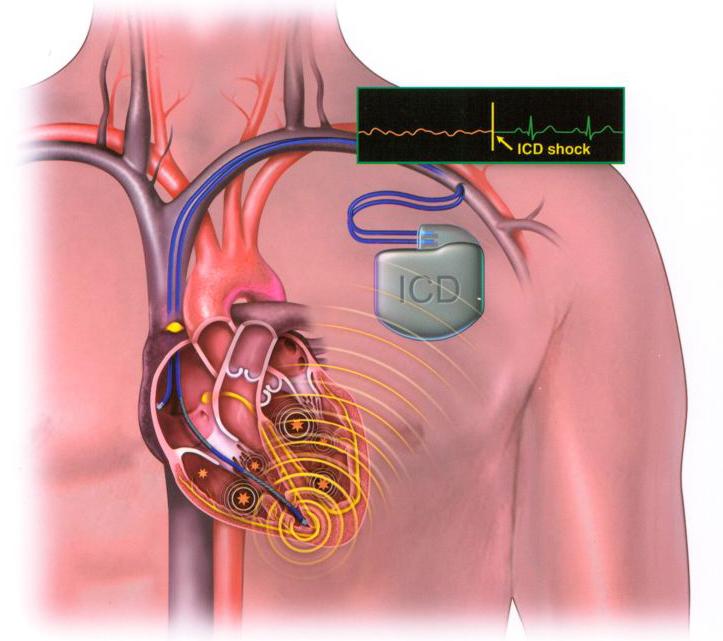 Phát triển máy tạo nhịp sinh học giúp điều trị rối loạn nhịp tim