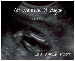 ... Ultrasound at 18 weeks, 3 days | by LULUBLOOM :: lucia