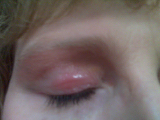 grain allergy raw eyelid rash
