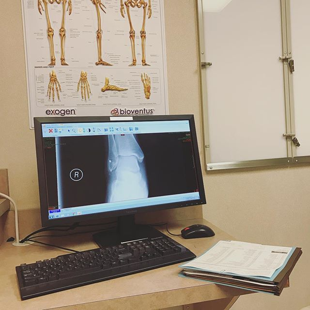 Dec. 27: Today is one week since I broke my ankle, and I had my follow-up with an orthopedic doctor. It's hard to believe that some small, broken, floating around bone fragments are what's causing me so much pain. #project365