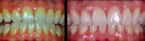 台中權泓牙醫分享 居家牙齒美白的三種方式及注意事項-美白貼片-前後對照