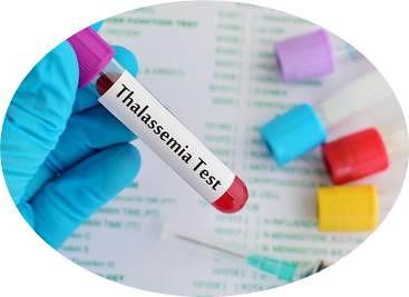 Obat Sakit Thalasemia Minor