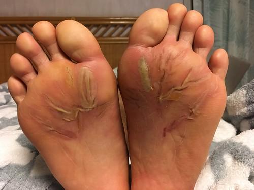 足裏のマメが痛すぎて立つこともできない。