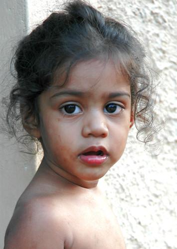 Sri lanka girl in gyno office by snahbrandy 6