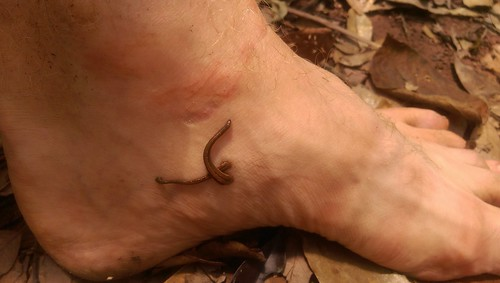 leeches on a foot