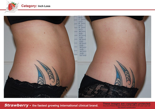B4 & After female abdomen 26 lrg