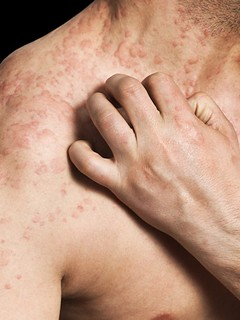 Skin Allergy Symptoms Allergy