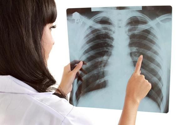Bahaya Tulang Rusuk Patah