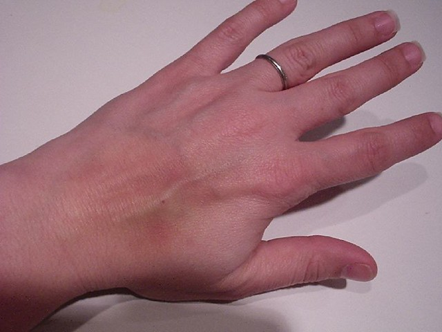 Crooked Ring Finger Meaning