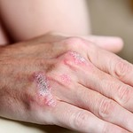 Dr. Joel Schlessinger explains the difference between eczema and psoriasis